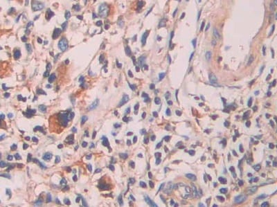 Immunohistochemistry (Formalin/PFA-fixed paraffin-embedded sections) - Anti-Serum Amyloid P/SAP antibody (ab233265)