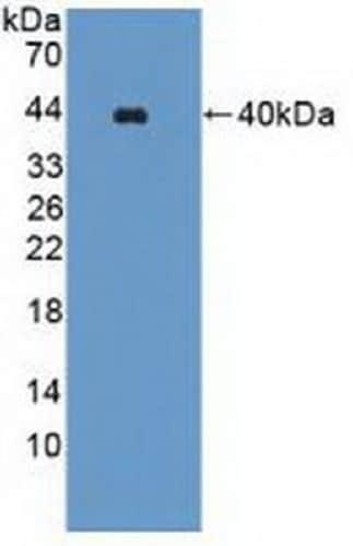 Western blot - Anti-WNK1 antibody (ab233266)