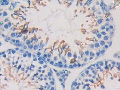 Immunohistochemistry (Formalin/PFA-fixed paraffin-embedded sections) - Anti-Nexilin/F-actin-binding protein antibody (ab233267)
