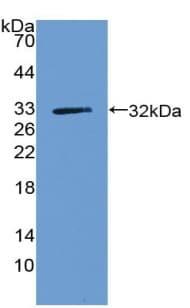 Western blot - Anti-ZNF179/BFP antibody (ab233276)