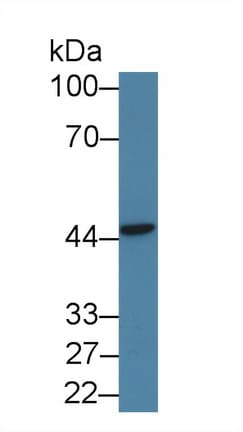 Western blot - Anti-PSMD6 antibody (ab233277)