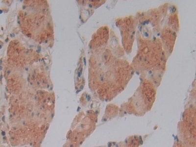Immunohistochemistry (Formalin/PFA-fixed paraffin-embedded sections) - Anti-GSTM4 antibody (ab233281)