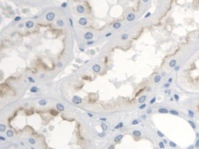Immunohistochemistry (Formalin/PFA-fixed paraffin-embedded sections) - Anti-Thromboxane A2 receptor/TBXA2R antibody - Cytoplasm Marker (ab233288)