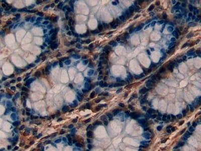 Immunohistochemistry (Formalin/PFA-fixed paraffin-embedded sections) - Anti-PKC epsilon antibody (ab233292)