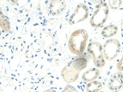 Immunohistochemistry (Formalin/PFA-fixed paraffin-embedded sections) - Anti-Visfatin antibody (ab233294)