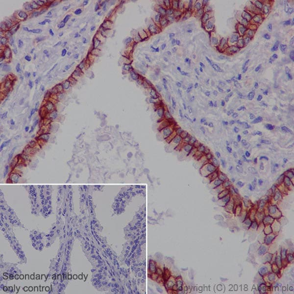 Immunohistochemistry (Formalin/PFA-fixed paraffin-embedded sections) - Anti-MRP4 antibody [EPR20403] (ab233382)