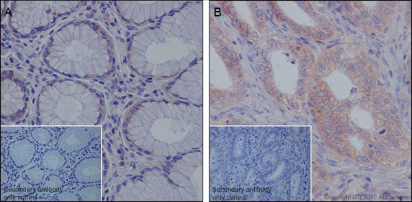 Immunohistochemistry (Formalin/PFA-fixed paraffin-embedded sections) - Anti-MRP1 antibody [EPR21062] (ab233383)