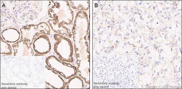 Immunohistochemistry (Formalin/PFA-fixed paraffin-embedded sections) - Anti-FH/Fumarase antibody [EPR21104] (ab233394)