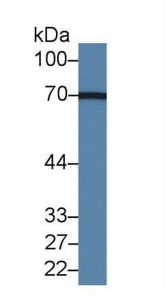 Western blot - Anti-Acyloxyacyl Hydrolase antibody (ab233405)