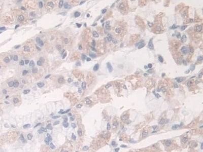 Immunohistochemistry (Formalin/PFA-fixed paraffin-embedded sections) - Anti-Acyloxyacyl Hydrolase antibody (ab233405)
