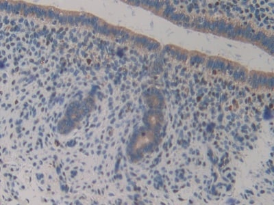Immunohistochemistry (Formalin/PFA-fixed paraffin-embedded sections) - Anti-GAB3 antibody (ab233411)