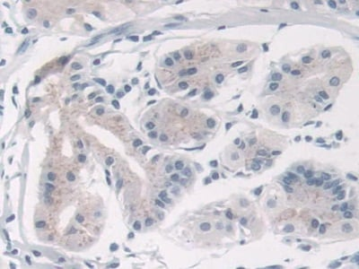 Immunohistochemistry (Formalin/PFA-fixed paraffin-embedded sections) - Anti-TRPC6 antibody (ab233413)