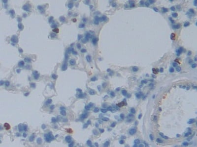 Immunohistochemistry (Formalin/PFA-fixed paraffin-embedded sections) - Anti-ICAD antibody (ab233419)