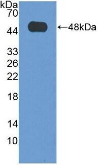 Western blot - Anti-VPS37A/HCRP1 antibody (ab233423)