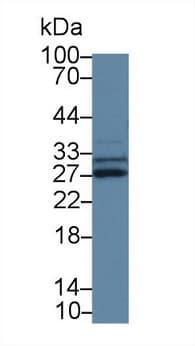 Western blot - Anti-SPRY3 antibody (ab233424)