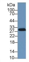 Western blot - Anti-StAR antibody (ab233427)