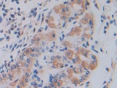 Immunohistochemistry (Formalin/PFA-fixed paraffin-embedded sections) - Anti-SHMT2/SHMT antibody (ab233430)