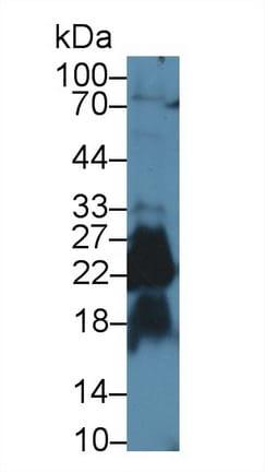 Western blot - Anti-SHISA4 antibody (ab233436)