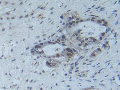 Immunohistochemistry (Formalin/PFA-fixed paraffin-embedded sections) - Anti-Raftlin antibody (ab233438)