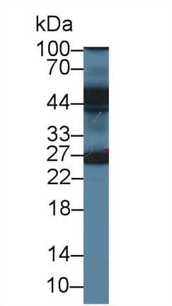 Western blot - Anti-Erlin-2 antibody (ab233440)