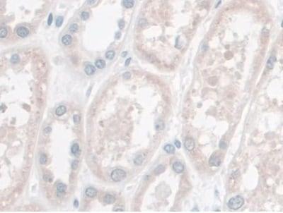 Immunohistochemistry (Formalin/PFA-fixed paraffin-embedded sections) - Anti-LETMD1/HCCR-1 antibody (ab233445)