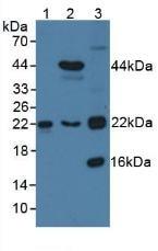 Western blot - Anti-TAGLN2 antibody (ab233478)