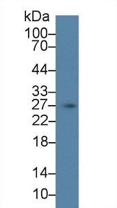 Western blot - Anti-SCGN/Secretagogin antibody (ab233481)