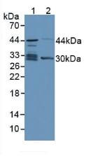 Western blot - Anti-TPMT antibody (ab233511)