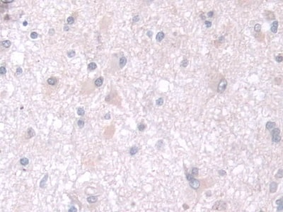 Immunohistochemistry (Formalin/PFA-fixed paraffin-embedded sections) - Anti-TPMT antibody (ab233511)