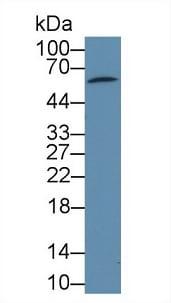 Western blot - Anti-PDP2 antibody (ab233517)