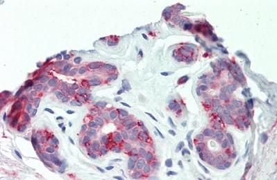 Immunohistochemistry (Formalin/PFA-fixed paraffin-embedded sections) - Anti-ITGB6 antibody (ab233519)