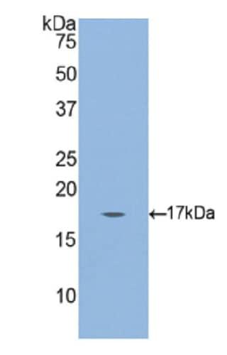 Western blot - Anti-Gastrokine 3 antibody (ab233523)