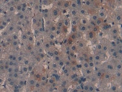 Immunohistochemistry (Formalin/PFA-fixed paraffin-embedded sections) - Anti-CDKN2A antibody (ab233525)