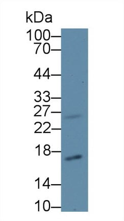 Western blot - Anti-CDKN2A antibody (ab233525)