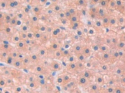 Immunohistochemistry (Formalin/PFA-fixed paraffin-embedded sections) - Anti-IL-13 receptor alpha 1 antibody (ab233528)