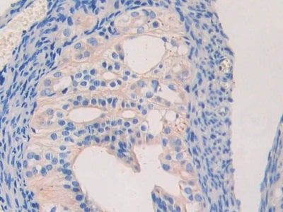 Immunohistochemistry (Formalin/PFA-fixed paraffin-embedded sections) - Anti-Lamin B2 antibody (ab233530)