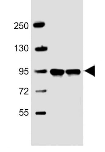 Western blot - Anti-PPFIBP1 antibody (ab233536)