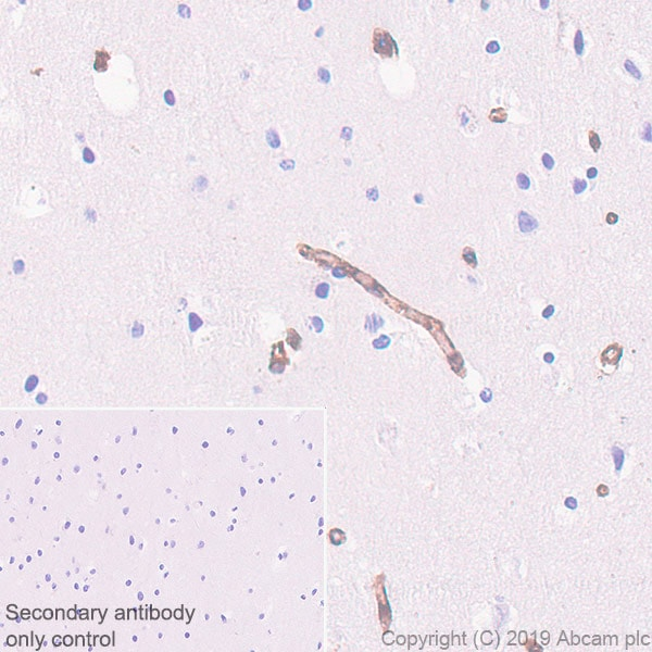 Immunohistochemistry (Formalin/PFA-fixed paraffin-embedded sections) - Anti-IFITM1 antibody [EPR22620-12] (ab233545)