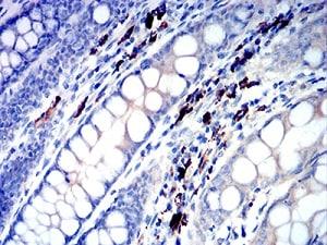 Immunohistochemistry (Formalin/PFA-fixed paraffin-embedded sections) - Anti-IGLC2 antibody [5E12B9] (ab233563)