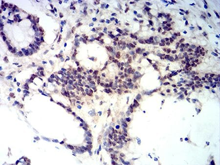 Immunohistochemistry (Formalin/PFA-fixed paraffin-embedded sections) - Anti-Ctip2 antibody [1F8G8] (ab233713)