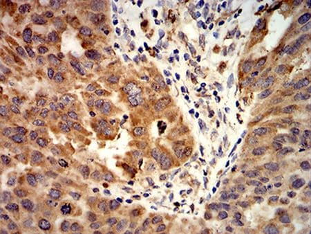 Immunohistochemistry (Formalin/PFA-fixed paraffin-embedded sections) - Anti-Activin Receptor Type IA antibody [2E2C11] (ab233716)