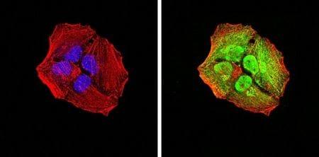 Immunocytochemistry/ Immunofluorescence - Anti-Activin Receptor Type IA antibody [2E2C11] (ab233716)