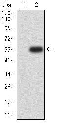 Western blot - Anti-CHRNA6 antibody [5B6G8] (ab233721)
