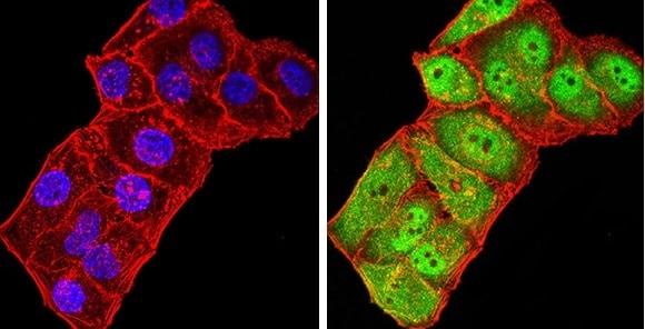 Immunocytochemistry/ Immunofluorescence - Anti-GRIK3/GluK3 antibody [2B3D1] (ab233734)