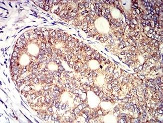 Immunohistochemistry (Formalin/PFA-fixed paraffin-embedded sections) - Anti-KIR3DL1 antibody [6D9F6] (ab233740)