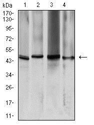 Western blot - Anti-Aquaporin 2 antibody [7H8B5] (ab233742)