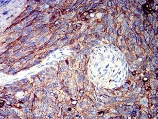 Immunohistochemistry (Formalin/PFA-fixed paraffin-embedded sections) - Anti-CD166 antibody [3D9F1] (ab233750)