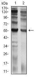 Western blot - Anti-IL-9R antibody [4A11H2] (ab233757)