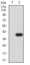 Western blot - Anti-P2Y12 antibody [1C2A9] (ab233760)