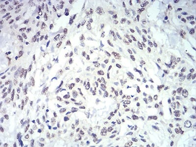 Immunohistochemistry (Formalin/PFA-fixed paraffin-embedded sections) - Anti-IL-28A antibody [7B9A4] (ab233761)